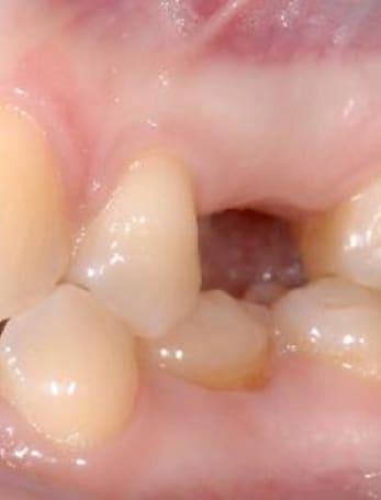 nobel-implant-5