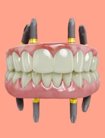 nobel-implant-2