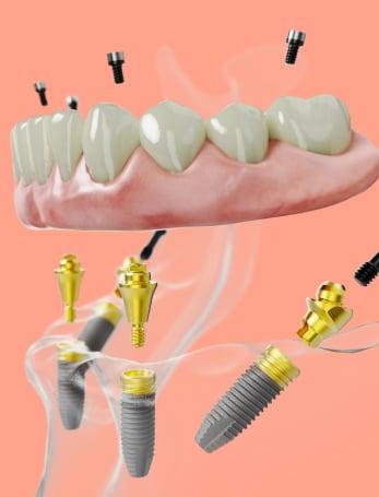 nobel-implant-3