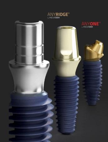 anyridge-implant-4