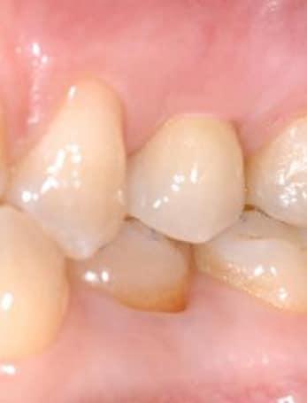 nobel-implant-6