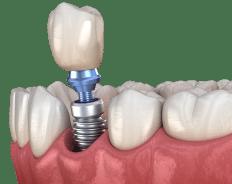 one__implant