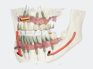 3shape-implant-construction