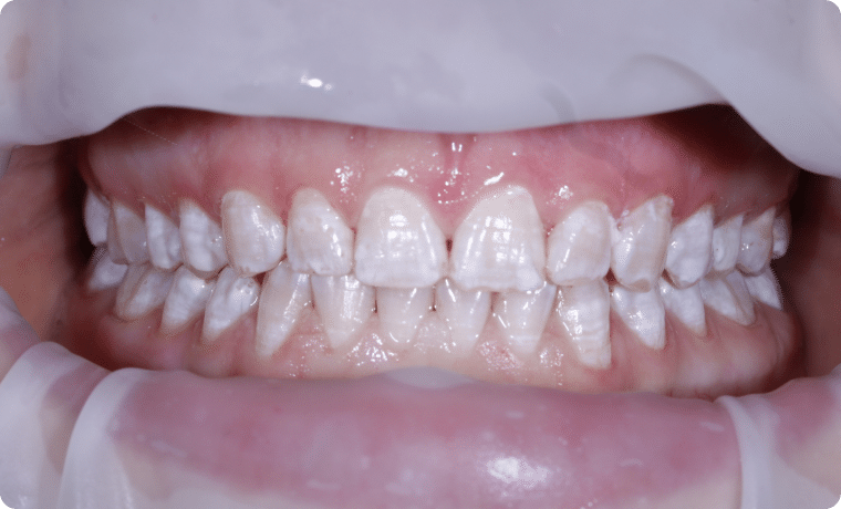 igiena dentara profesionala dupa