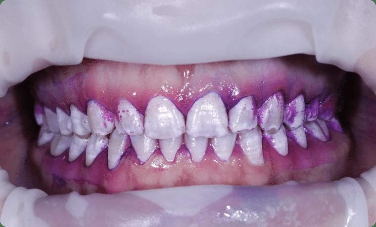 igiena dentara profesionala pana la