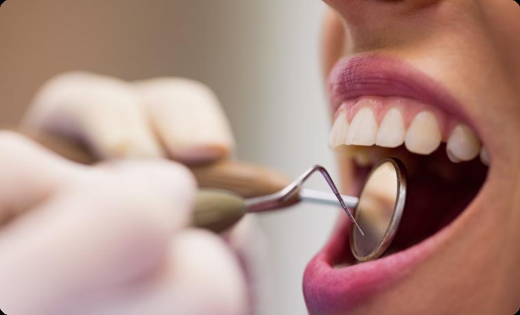 consultatie endodontie