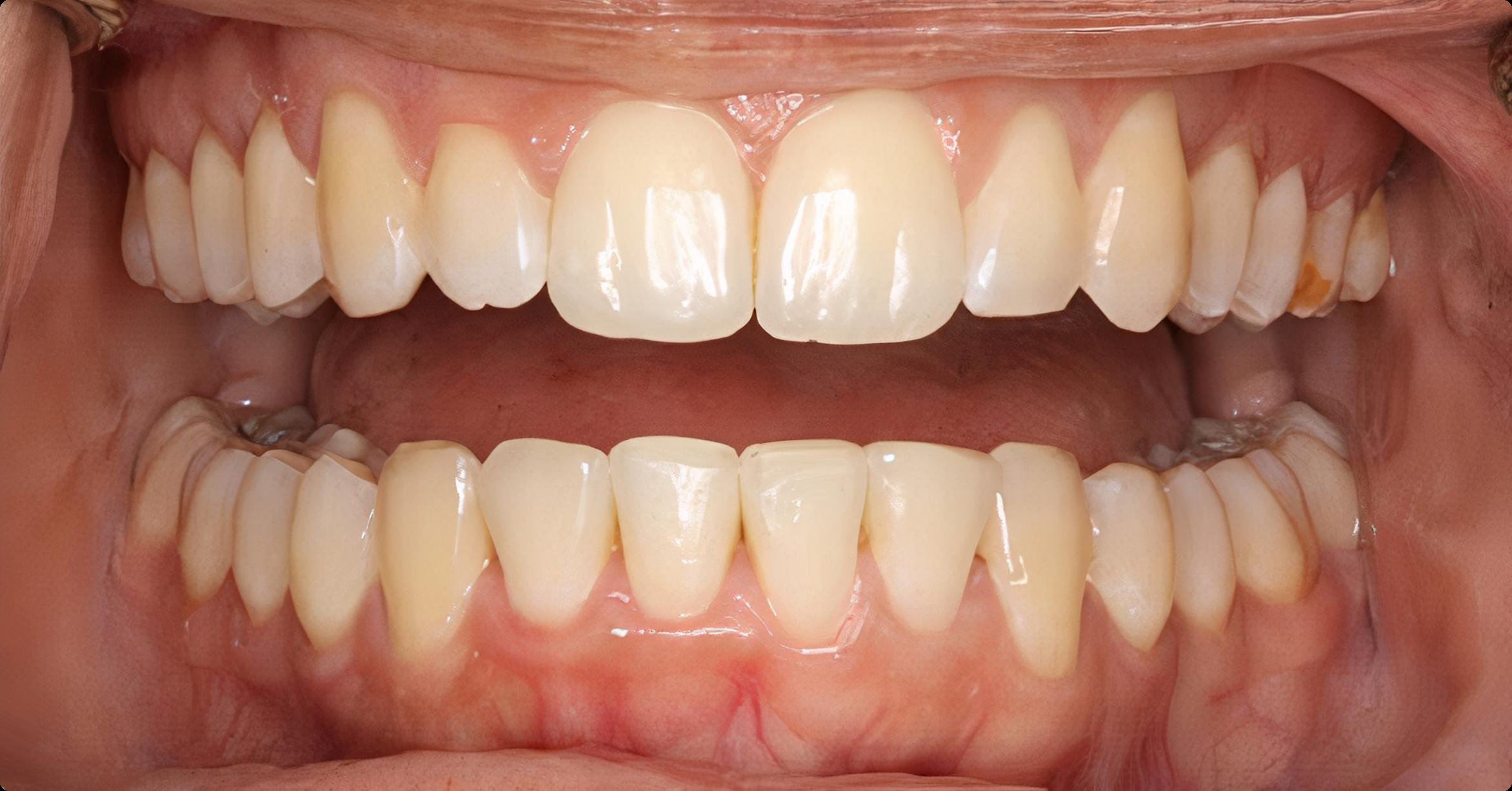 rezultat dupa tratament ortodontic