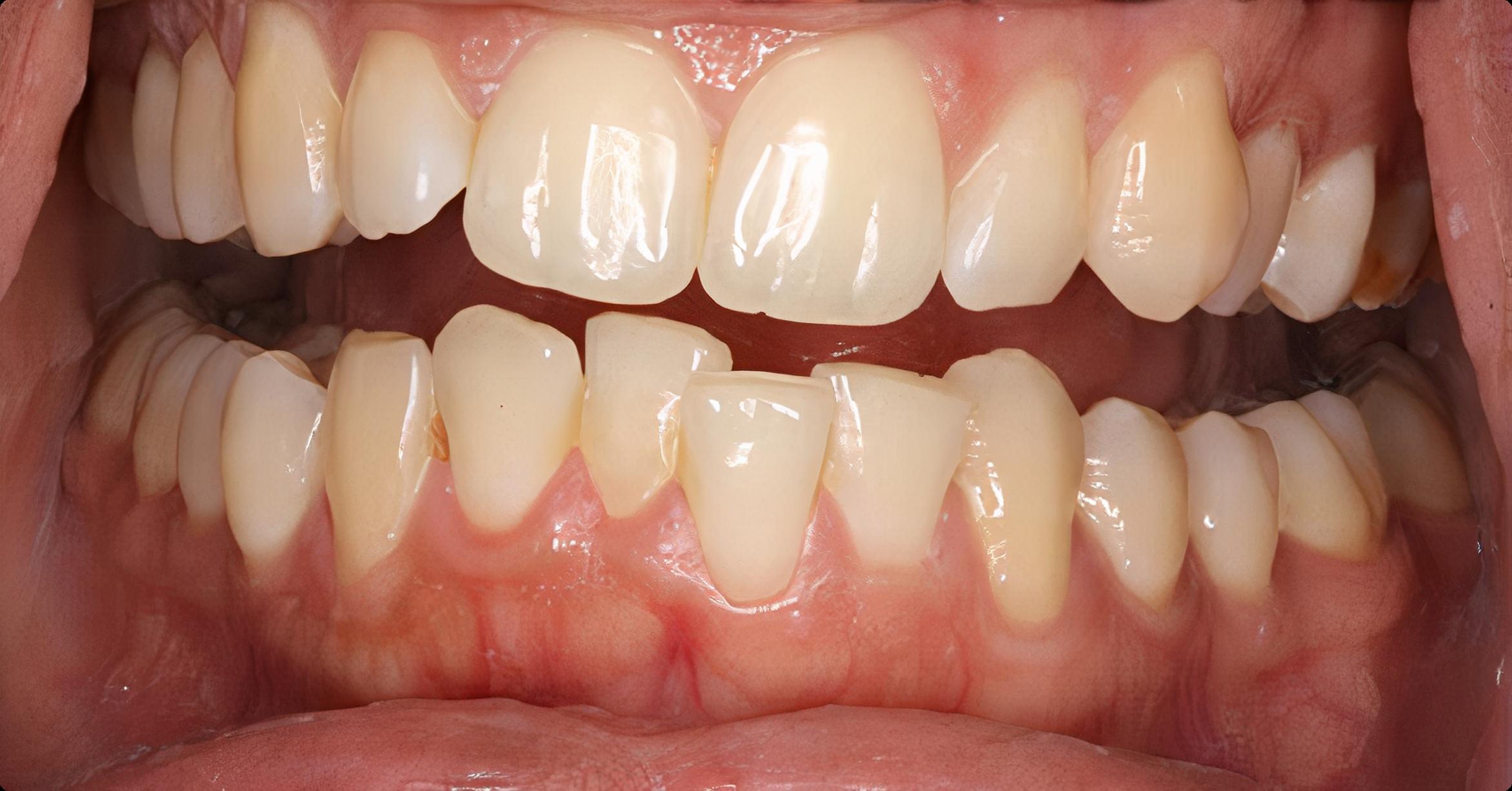 pana la tratament ortodontic