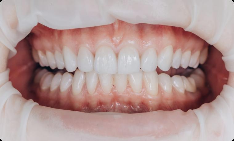 profilaxia dentara